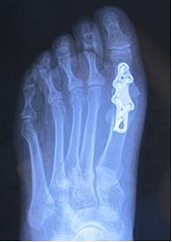 воспаление суставной капсулы плюсневой части 1 пальца стопы